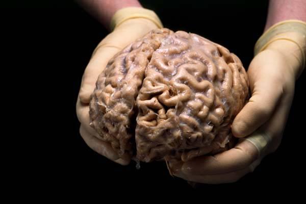 Cerebro, no hay dos iguales